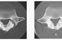 Back Injury CT Scan